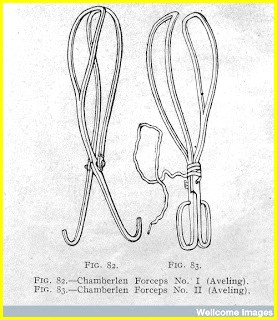 17th century, forceps invented by the Chamberlens