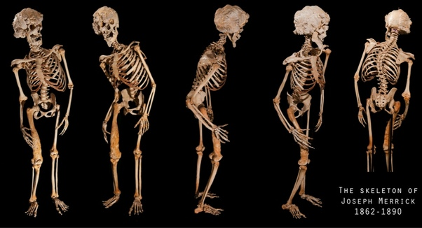 Skeleton of Joseph Merrick (the elephant man)
