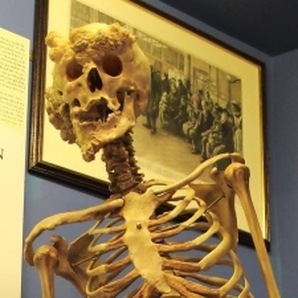 A vertical glass case displays Merrick's skeleton at the Royal London Hospital.